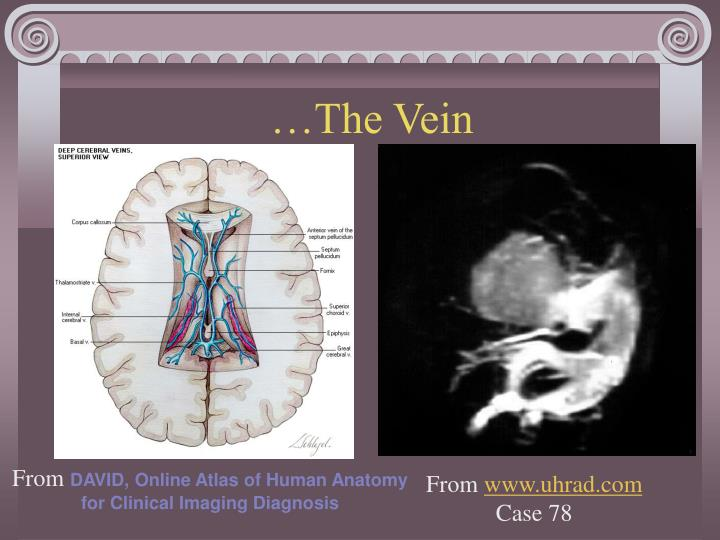 …The Vein