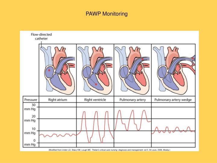 PAWP Monitoring