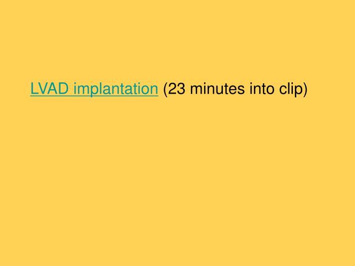 LVAD implantation
