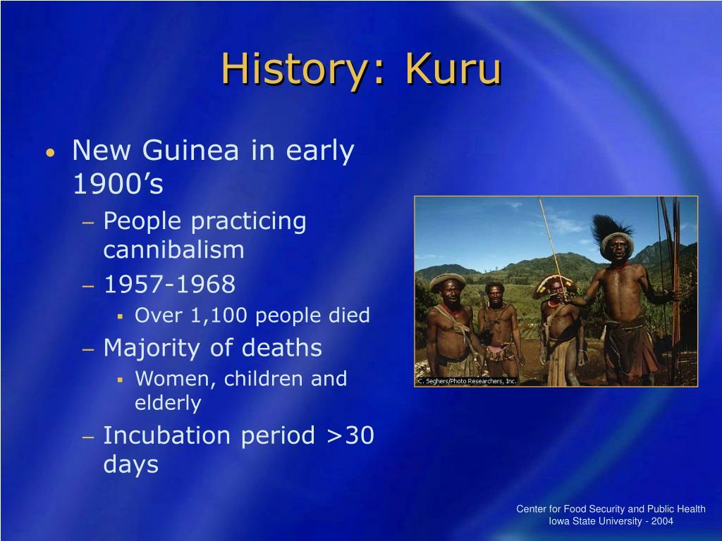 History: Kuru