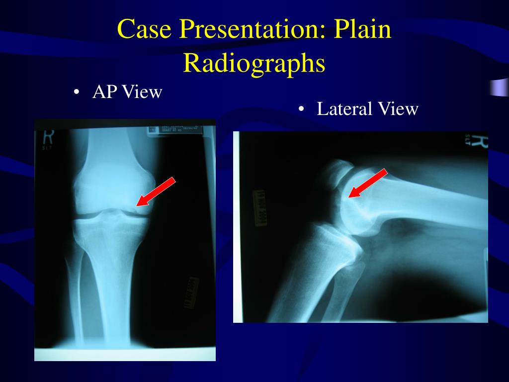 Case Presentation: Plain Radiographs
