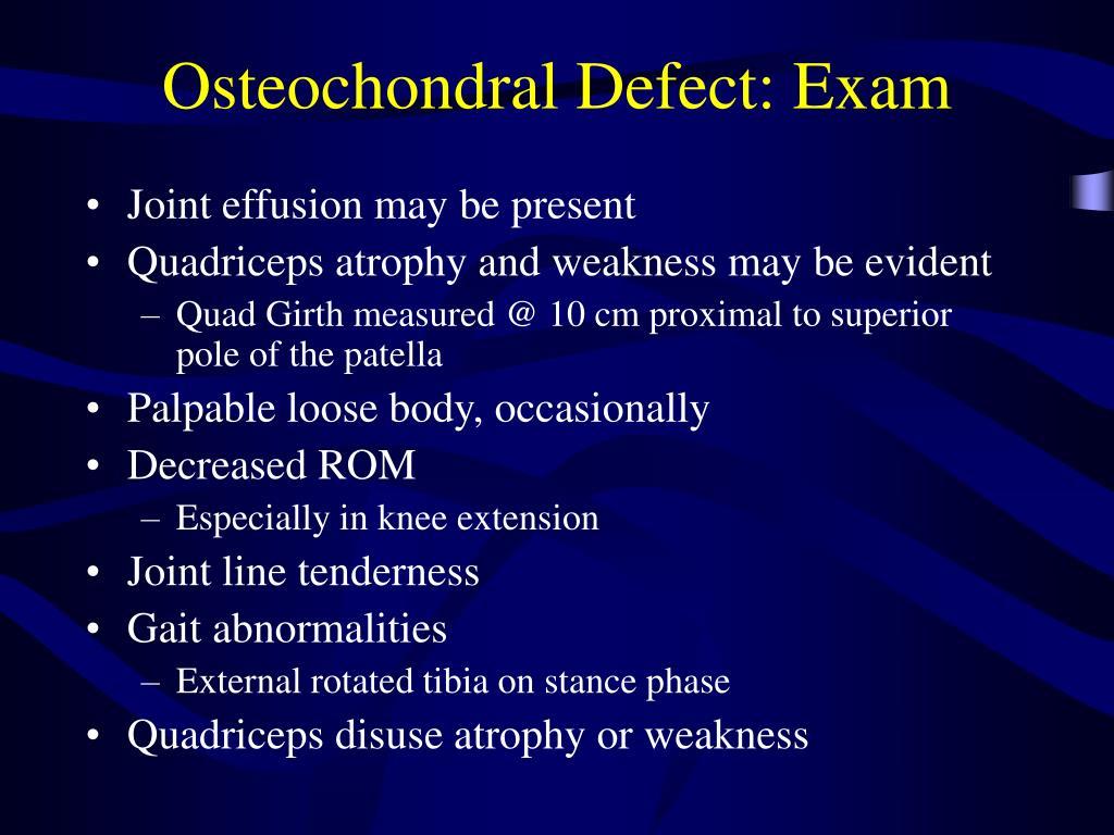 Osteochondral Defect: Exam