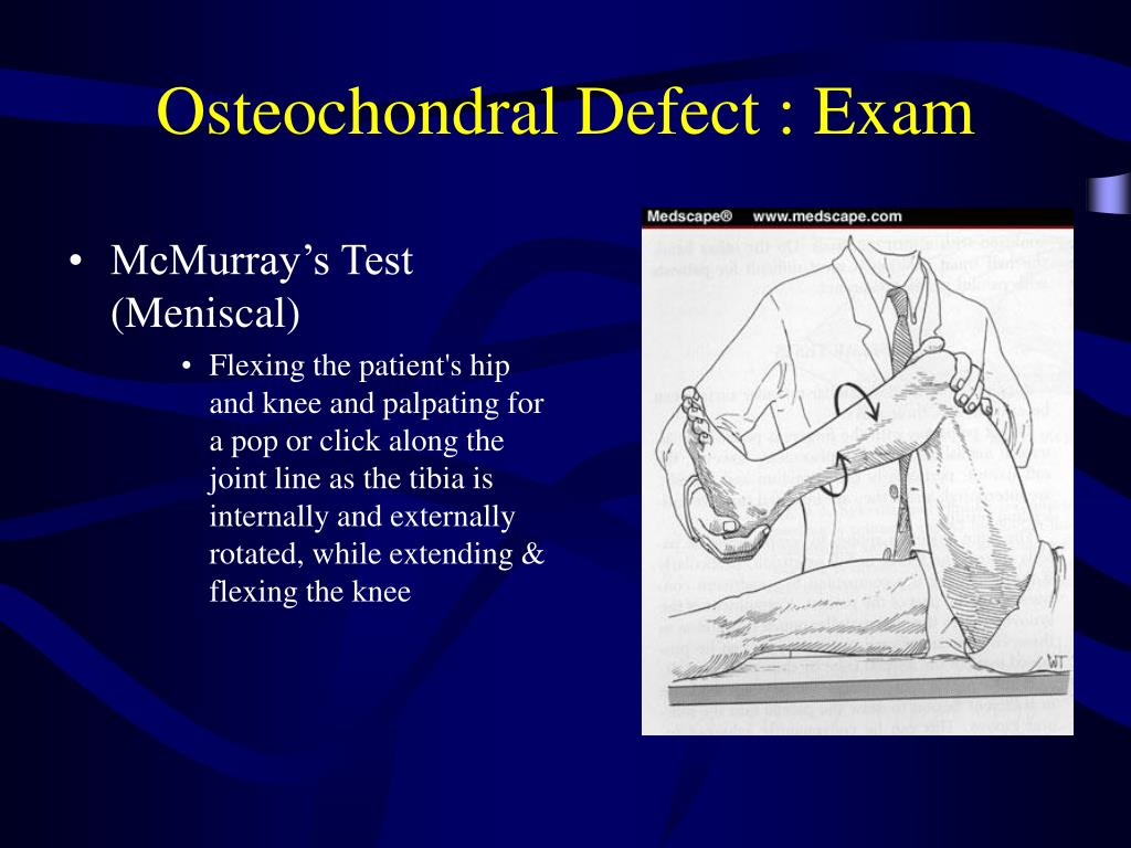 Osteochondral Defect : Exam