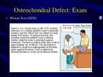 osteochondral defect exam26