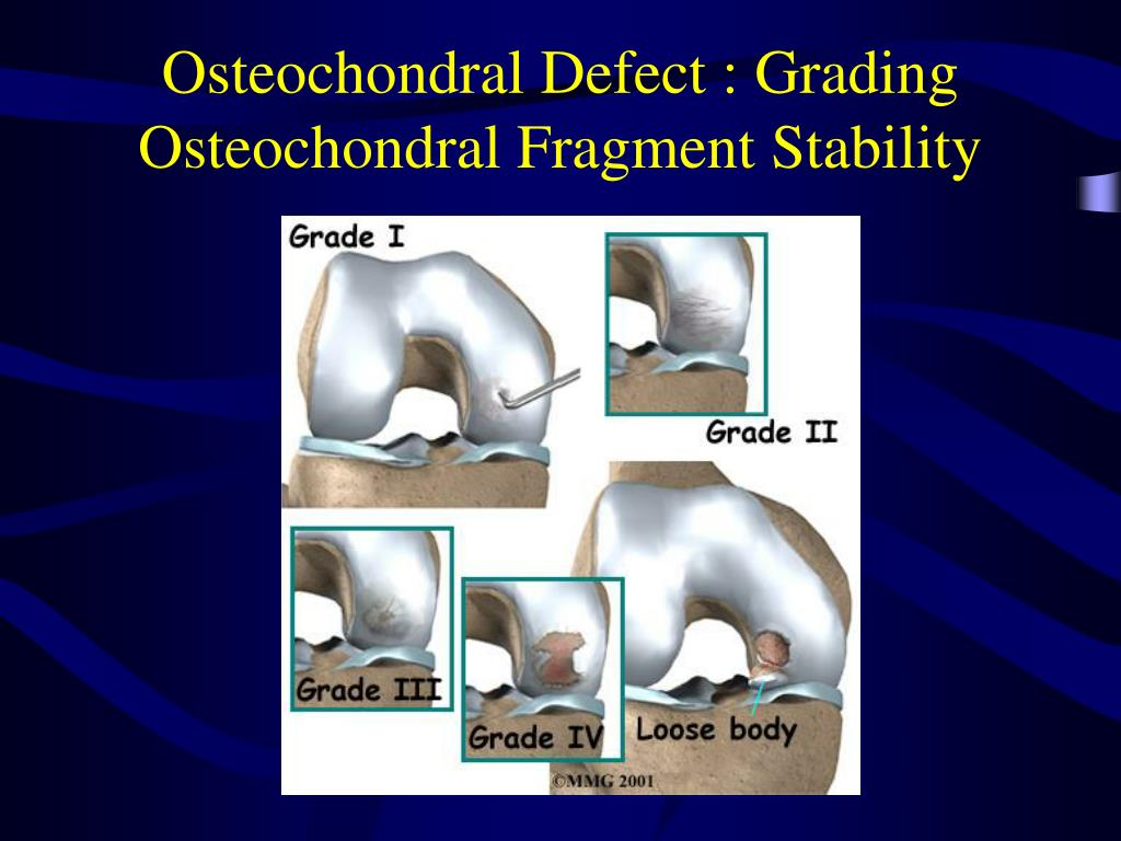 Osteochondral Defect : Grading Osteochondral Fragment Stability