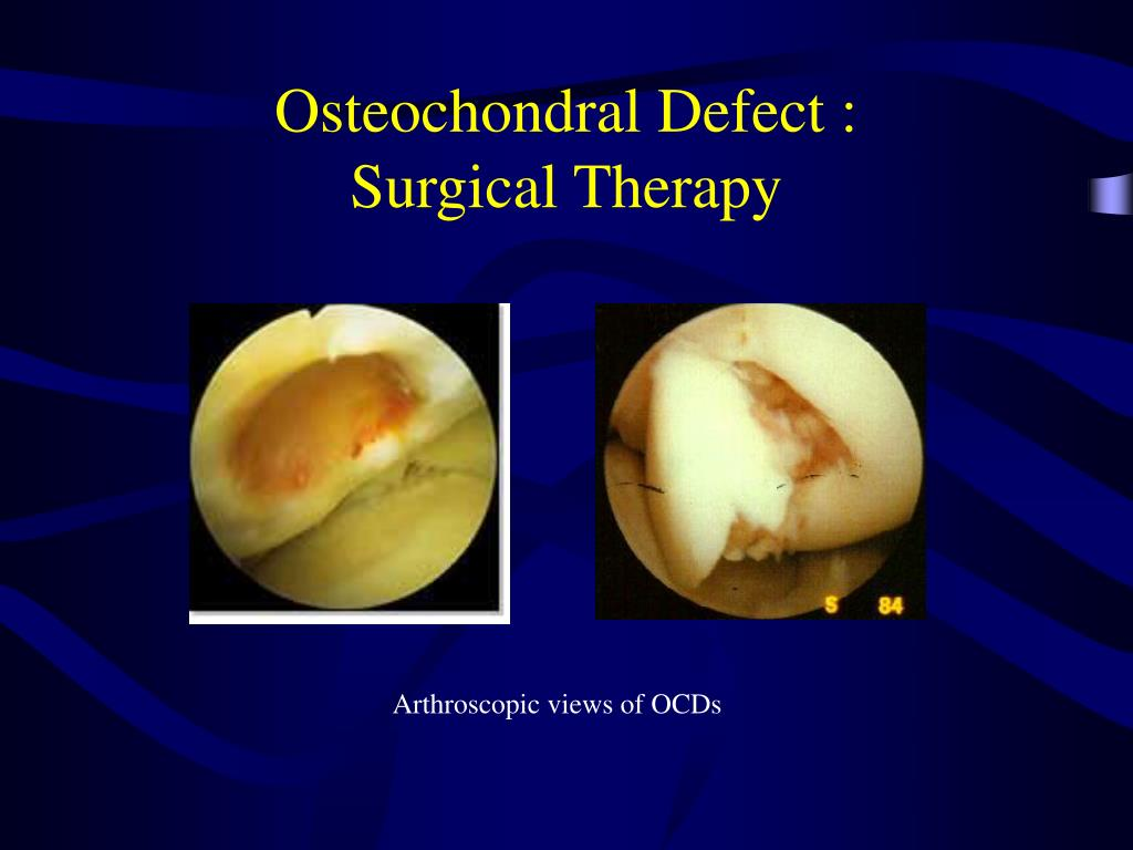 Osteochondral Defect :
