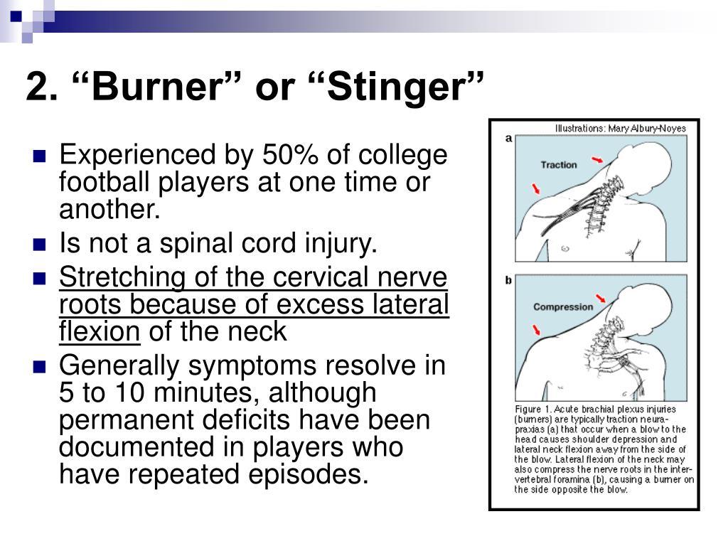 """2. """"Burner"""" or """"Stinger"""""""