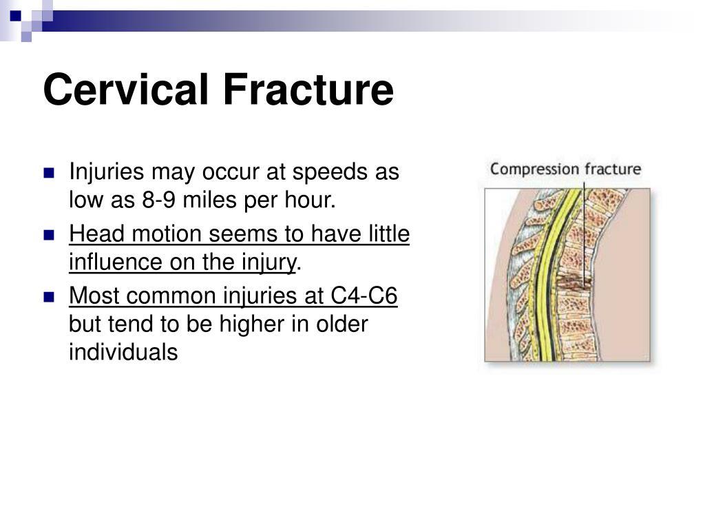 Cervical Fracture