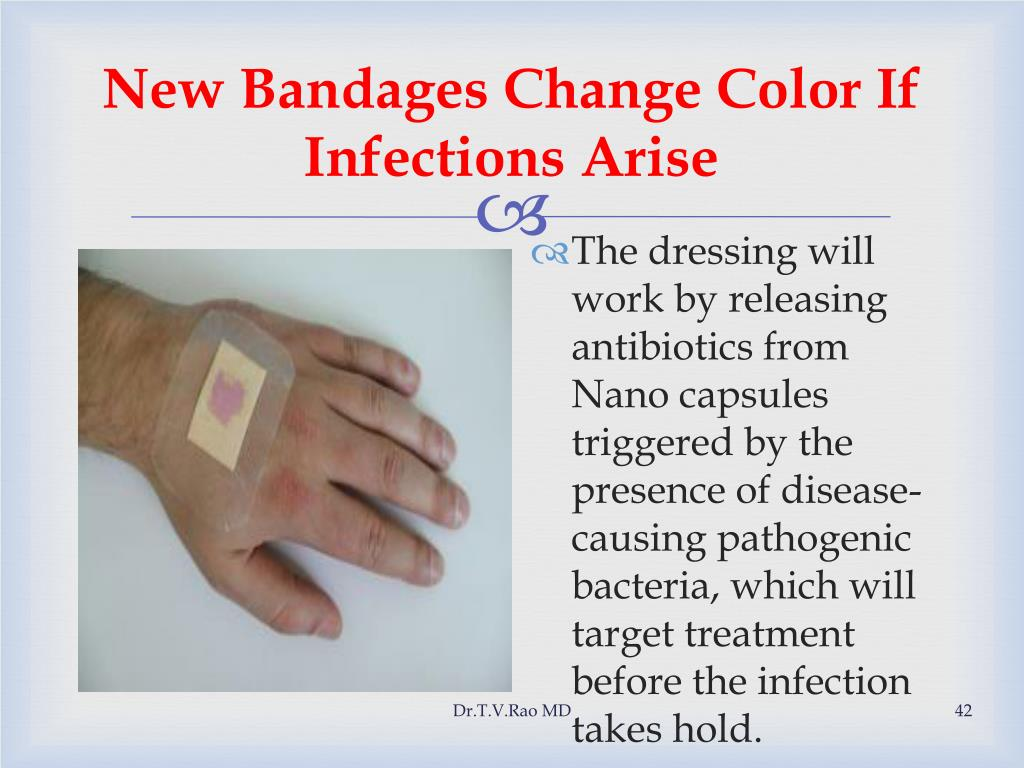 New Bandages Change Color If Infections Arise