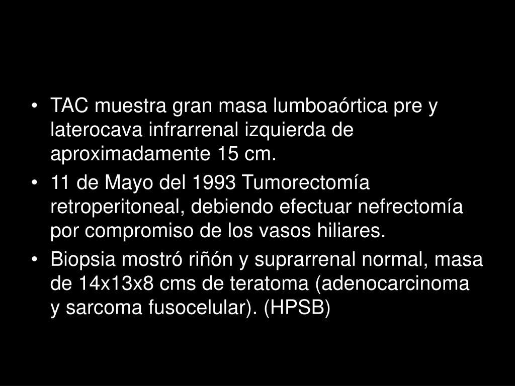 TAC muestra gran masa lumboaórtica pre y laterocava infrarrenal izquierda de aproximadamente 15 cm.