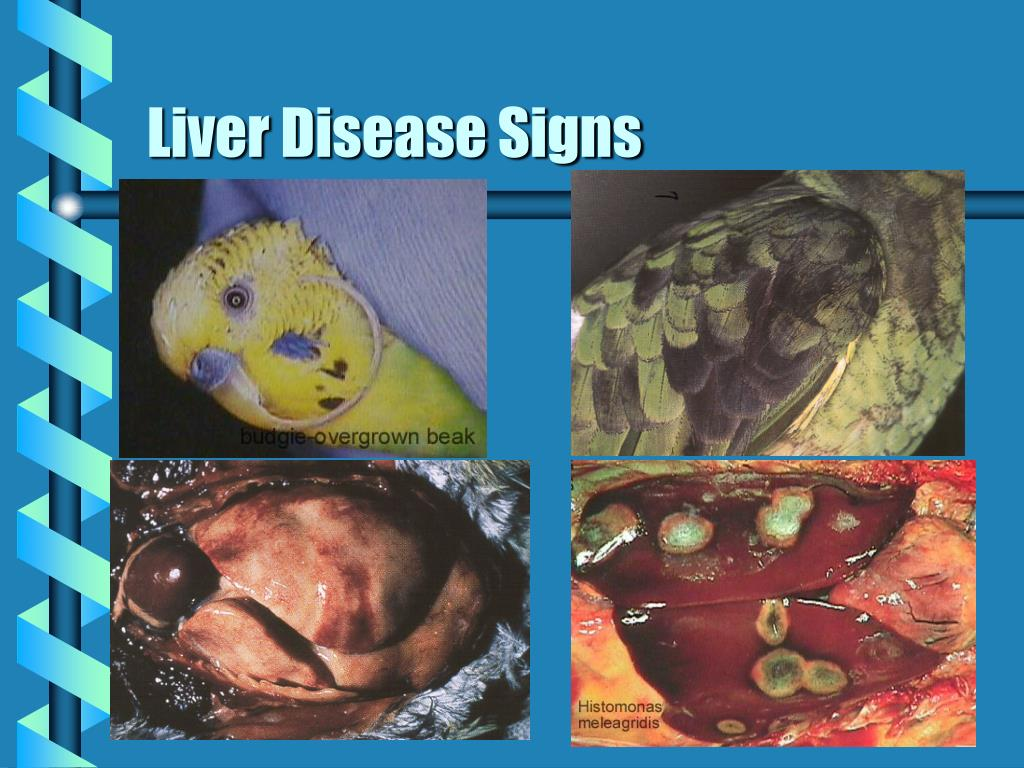 Liver Disease Signs