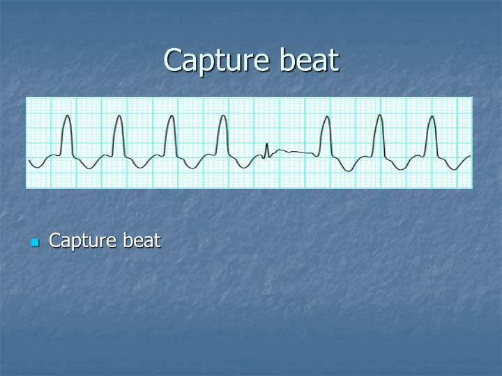 Capture beat