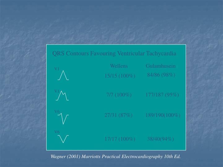 QRS Contours Favouring Ventricular Tachycardia