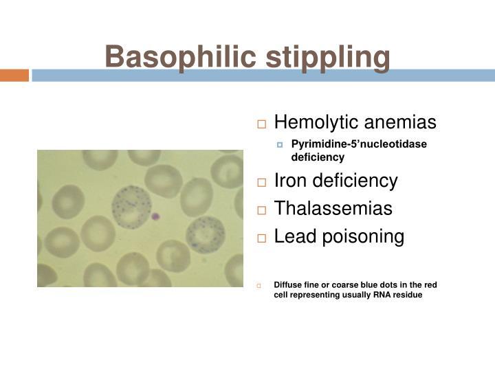 Basophilic stippling