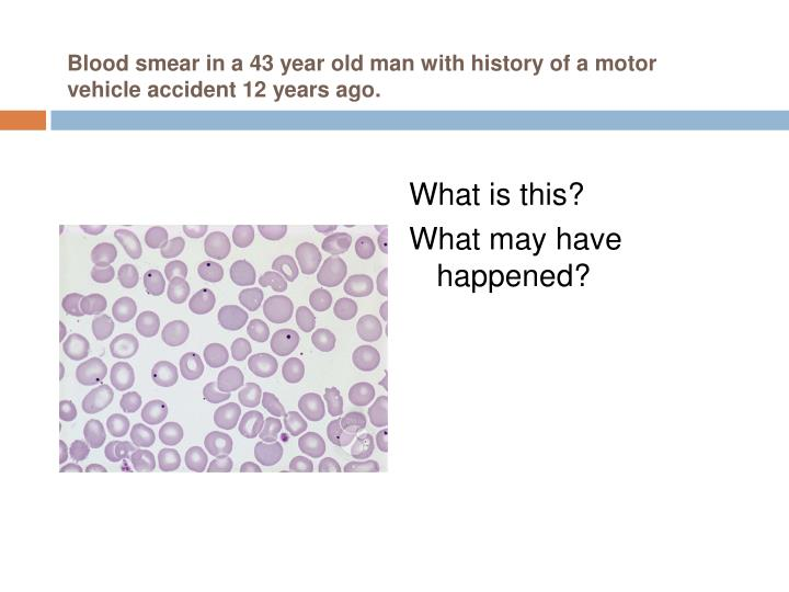 Blood smear in a 43 year old man with history of a motor vehicle accident 12 years ago.