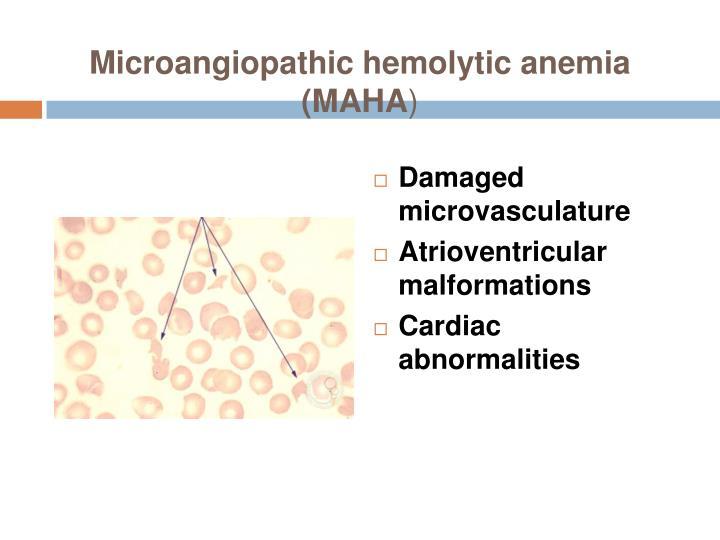 Microangiopathic hemolytic anemia (MAHA