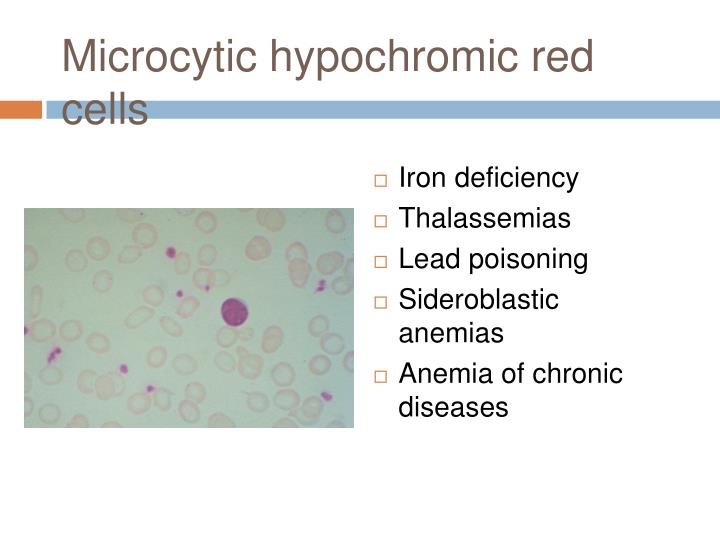 Microcytic hypochromic red cells