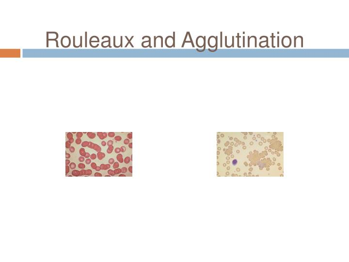 Rouleaux and Agglutination