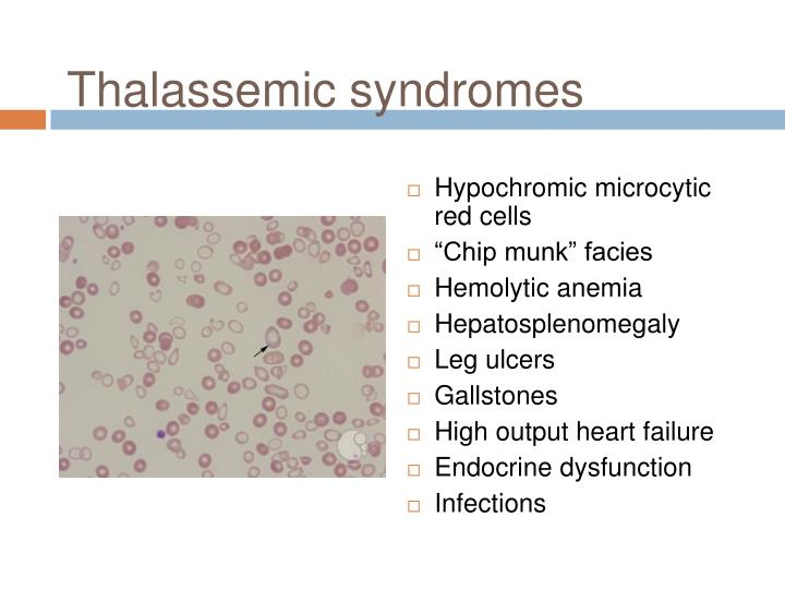 Thalassemic syndromes