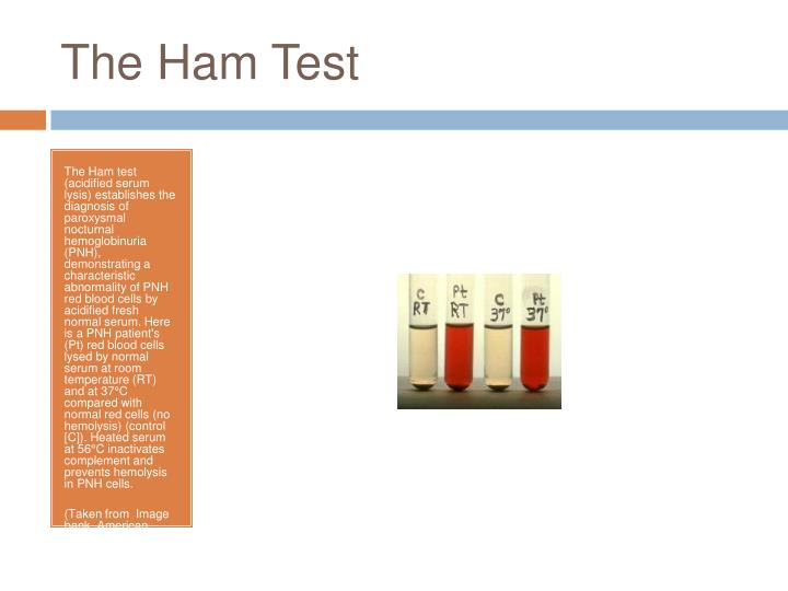 The Ham Test