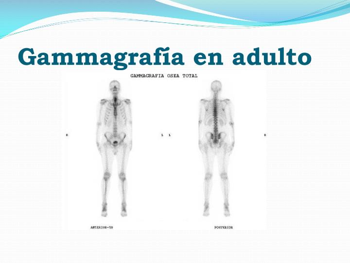 Gammagrafía en adulto