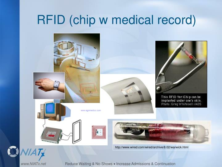 RFID (chip w medical record)