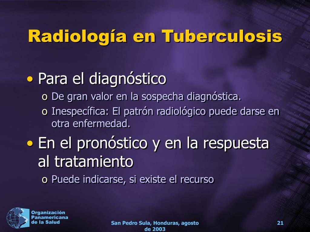 Radiología en Tuberculosis