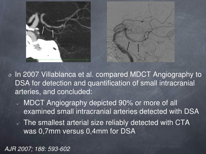 In 2007 Villablanca et al. compared MDCT Angiography to DSA for detection and quantification of small intracranial arteries, and concluded: