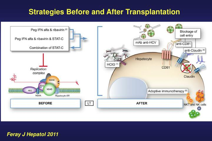 Strategies Before and After Transplantation
