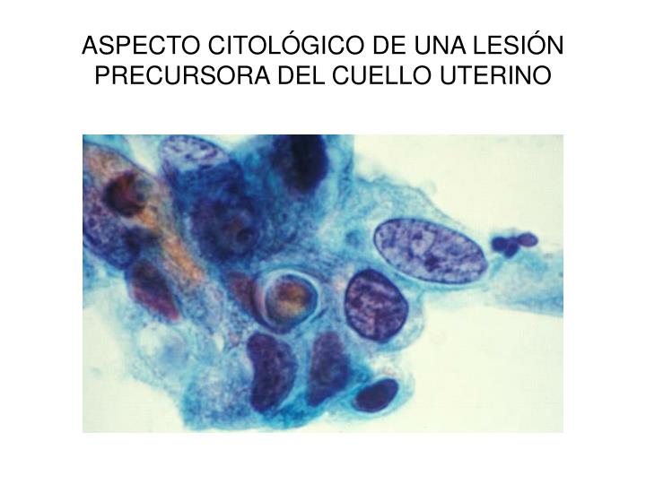 ASPECTO CITOLÓGICO DE UNA LESIÓN PRECURSORA DEL CUELLO UTERINO