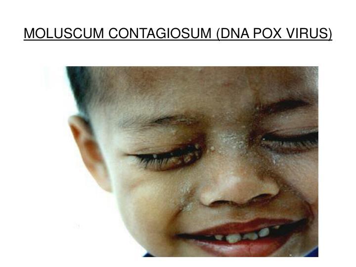 MOLUSCUM CONTAGIOSUM (DNA POX VIRUS)