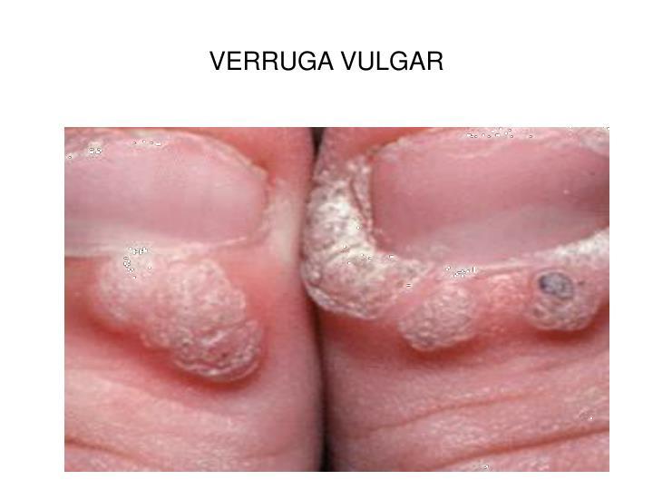 VERRUGA VULGAR