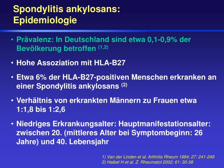 Spondylitis ankylosans: