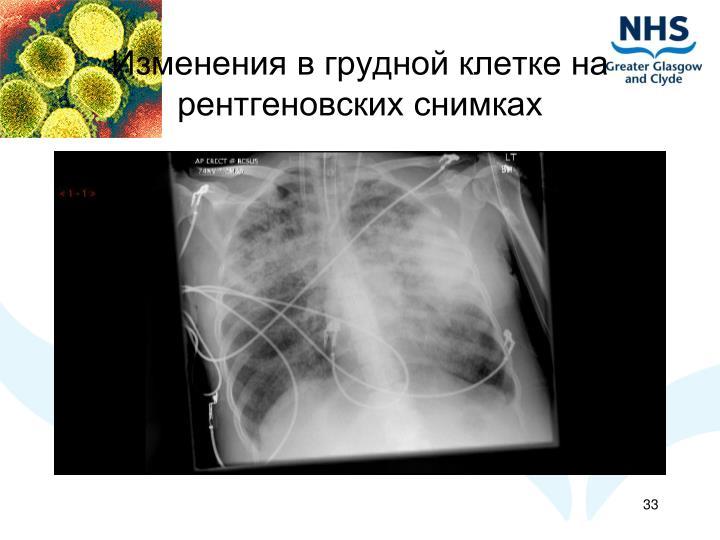 Изменения в грудной клетке на рентгеновских снимках