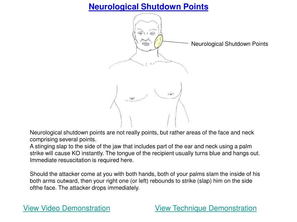 Neurological Shutdown Points
