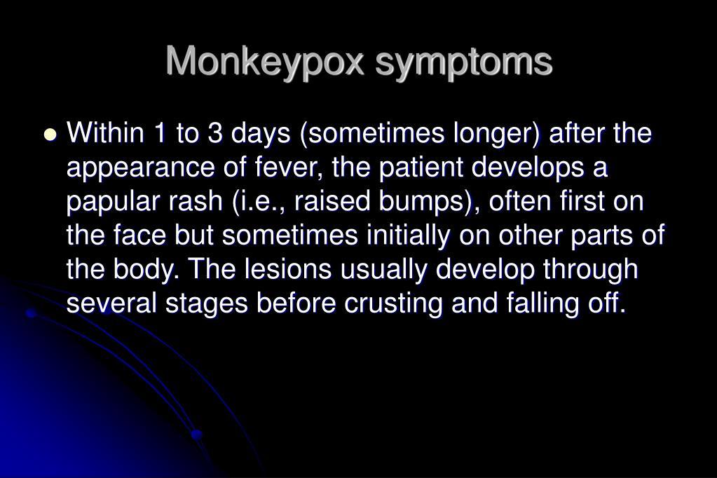 Monkeypox symptoms
