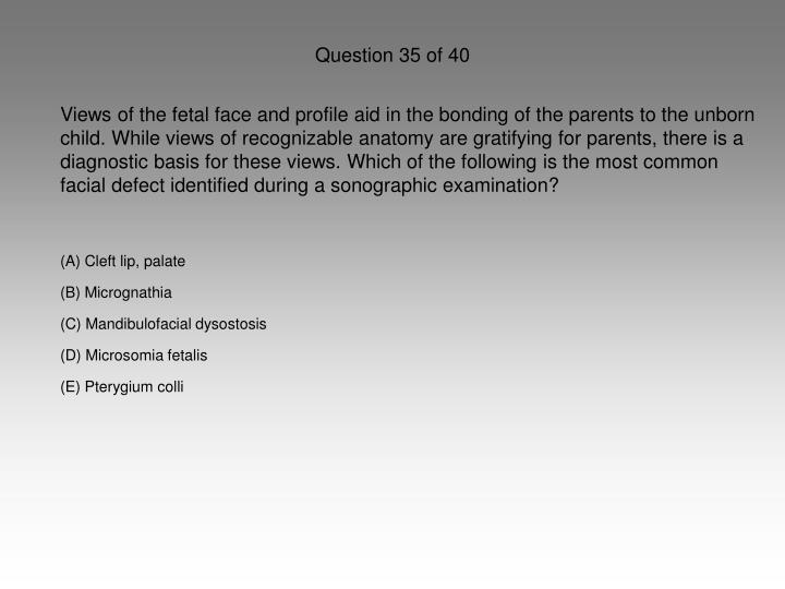 Question 35 of 40