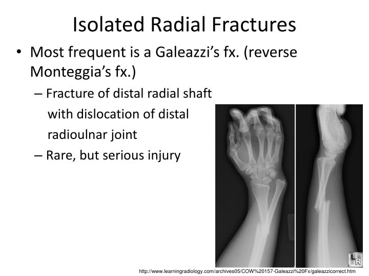 Isolated Radial Fractures