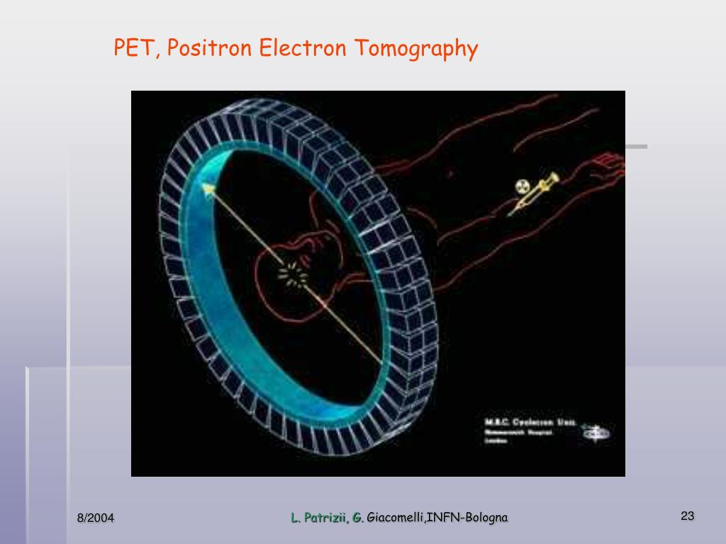PET, Positron Electron Tomography