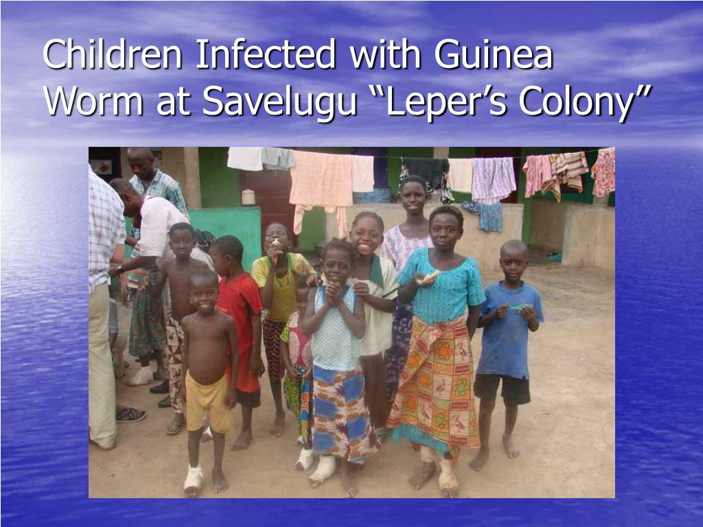 "Children Infected with Guinea Worm at Savelugu ""Leper's Colony"""