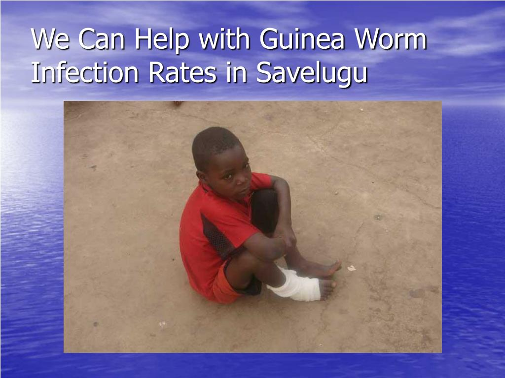 We Can Help with Guinea Worm Infection Rates in Savelugu