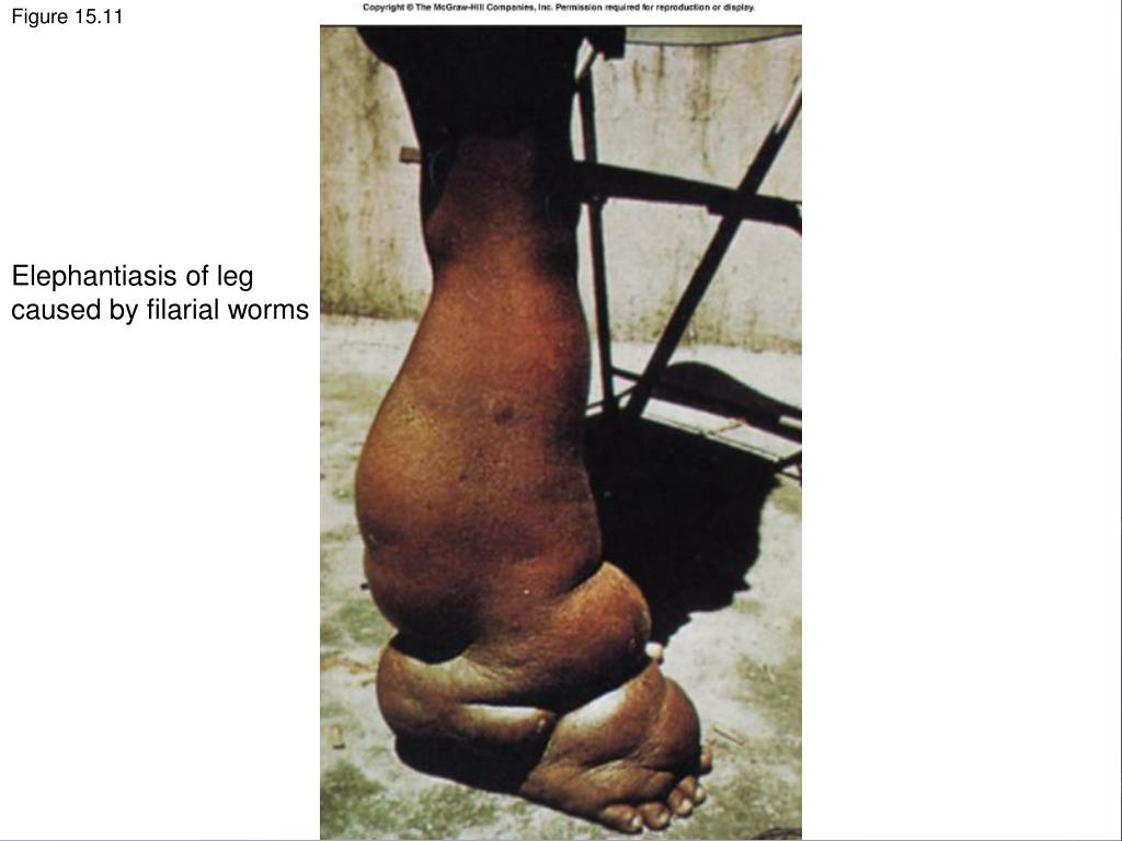 Elephantiasis of leg