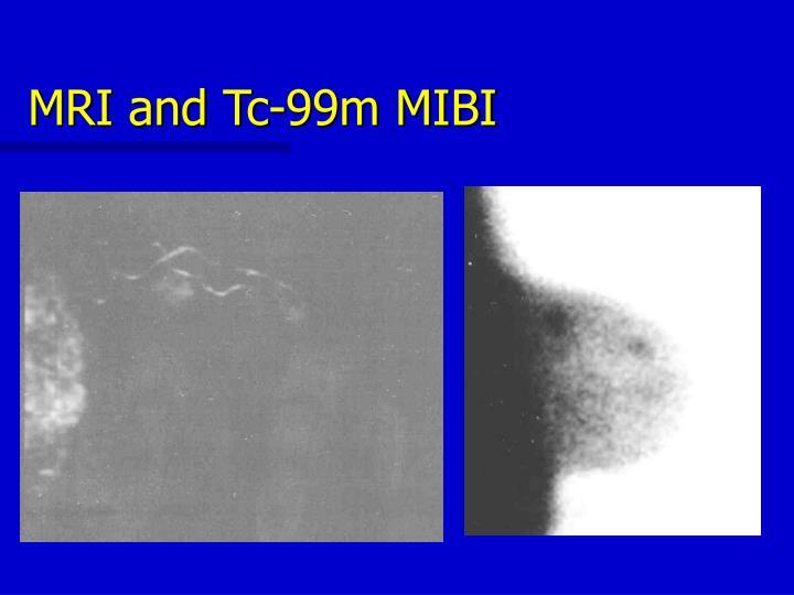 MRI and Tc-99m MIBI