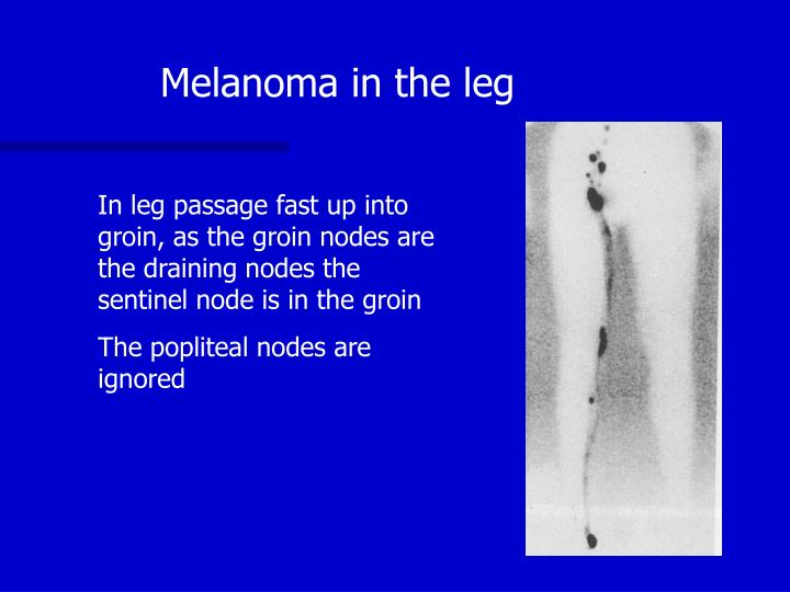 Melanoma in the leg