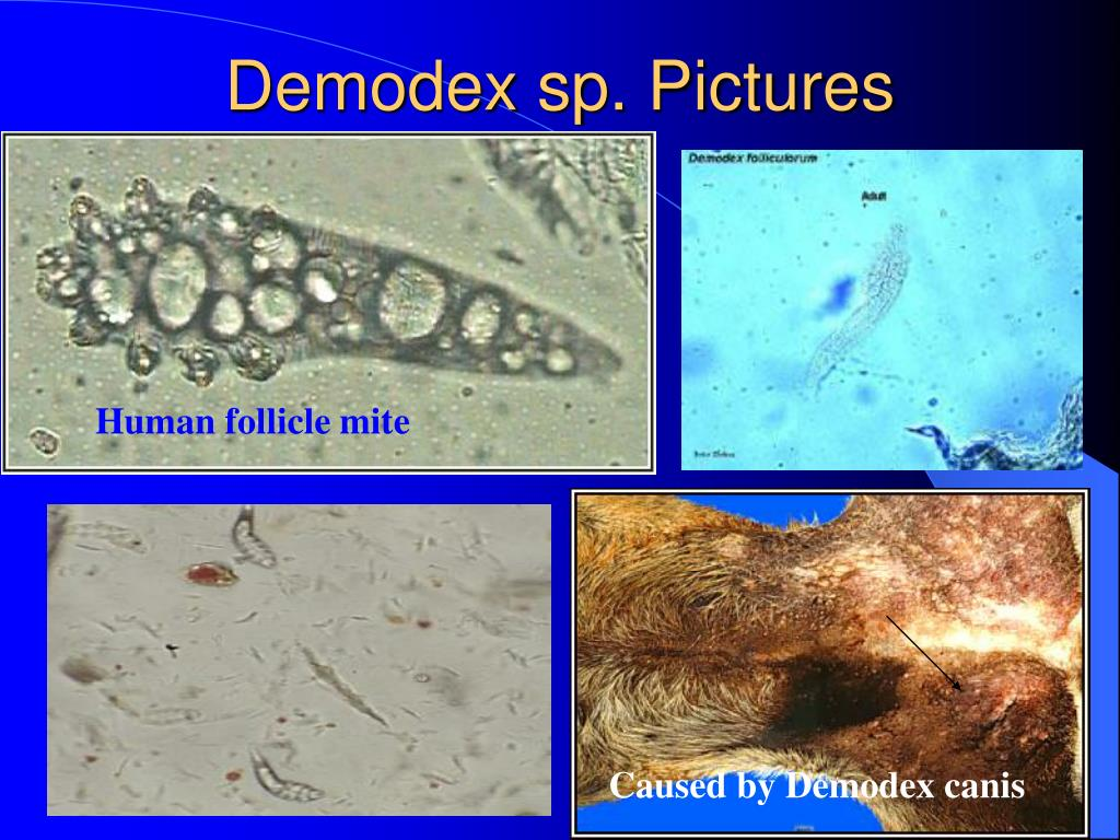 Demodex sp. Pictures