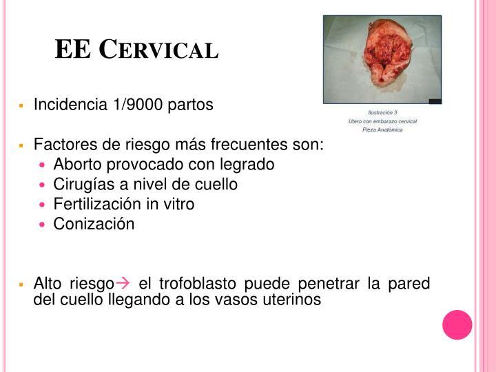 EE Cervical