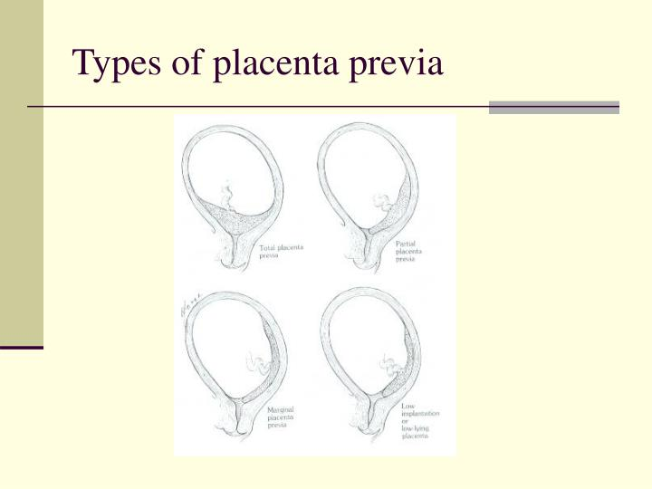 Types of placenta previa