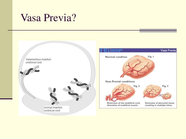 Vasa Previa?