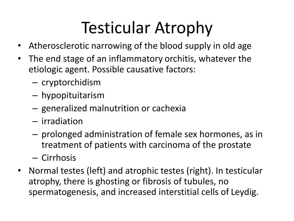 Testicular Atrophy