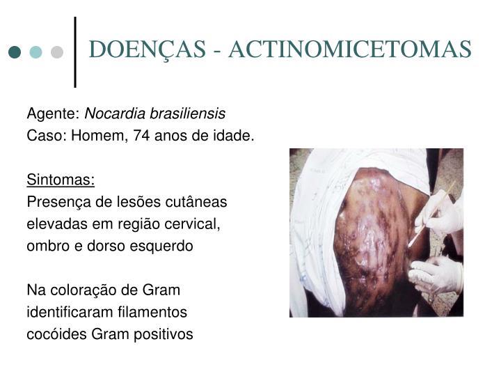 DOENÇAS - ACTINOMICETOMAS